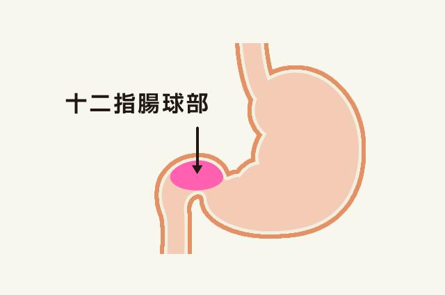 十二指腸球部変形2